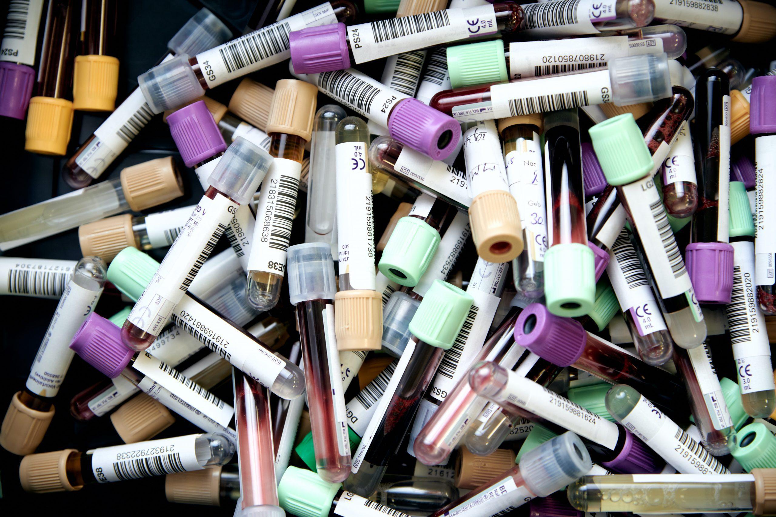 waarom preventief bloedonderzoek doen